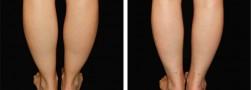 caviglie sottili: Liposuzione