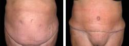 L'addominoplastica, chirurgia estetica