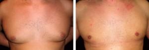 Adipomestia e ginecomastia in chirurgia estetica