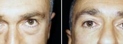 blefaroplastica-superiore-5