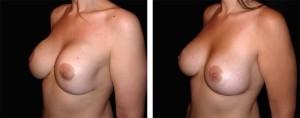 La chirurgia estetica riparativa: Mastoplastica Additiva Secondaria