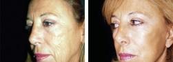 Lifting del viso femminile