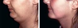 Gozzo o doppio mento, chirurgia plastica