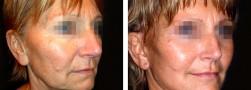 chirurgia viso. Il lifting