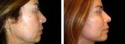 face lift viso