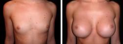 Ingrandimento del seno