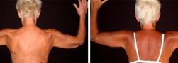 Lifting delle braccia per asportare pelle cadente