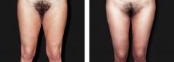 Il lifting delle cosce: ginocchio, cosce e genitali