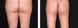 Chirurgia plastica estetica: il lifting delle cosce