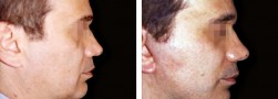 Chirurgia estetica uomo: Lifting