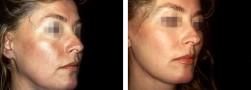 lifting volto femminile
