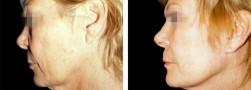 Eliminazione pelle eccesso viso