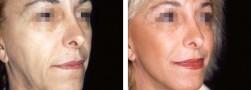 chirurgia estetica, lifting del viso