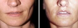 lip-lift-3