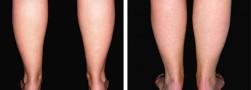 caviglie magre: lipostruttura