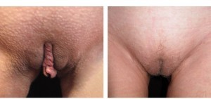 Chirurgia genitali femminili: lipostruttura delle grandi labbra