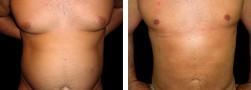 Liposuzione addome - eliminazione pancia uomo