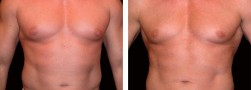 Liposuzione dell'addome body builder
