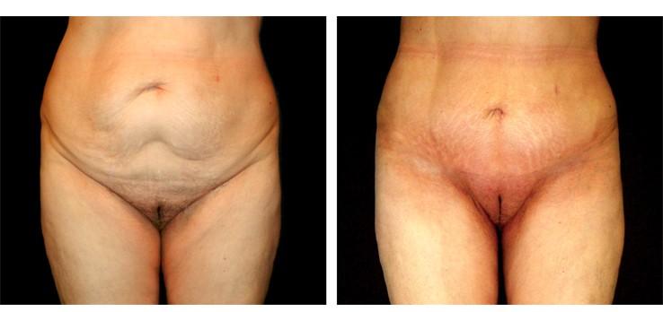 Liposuzione pube - Lifting monte di venere