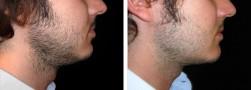 liposuzione-doppio-mento-uomo