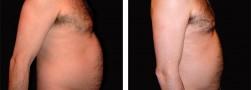 Liposuzione pancia mashile