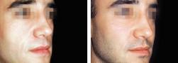 zigomi maschili, chirurgia estetica