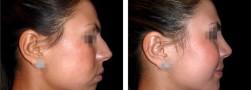 chirurgia estetica zigomi