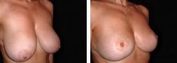 Sollevamento seno cadente