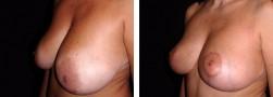 Aumento e sollevamento seno: la Mastopessi