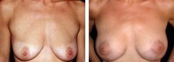 mastopessi-sollevamento-seno