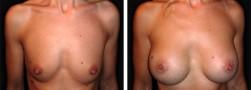 La Mastoplastica Additiva in endoscopia
