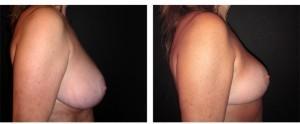 Mastoplastica riduttiva: intervento per la riduzione del seno