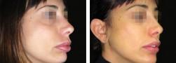 Protesi al mento: mentoplastica additiva