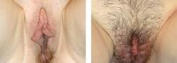 Ninfoplastica: piccola labbra