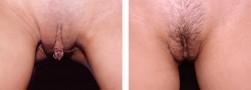 modellamento delle piccole labbra