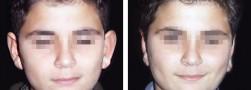 Esiti intervento di otoplastica orecchie: ragazzo, vista anteriore