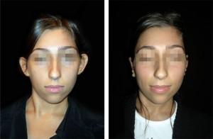 Esiti intervento di otoplastica: ragazza, vista anteriore