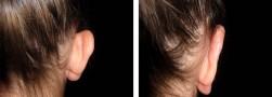 Esiti intervento di otoplastica orecchie: ragazza, vista posteriore