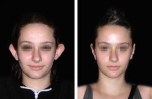 Esiti intervento di otoplastica orecchie: ragazza, vista anteriore