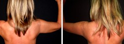 Pelle cadente braccia: il lifting