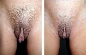 Chirurgia estetica genitali femminili