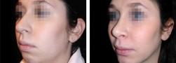 La profiloplastica femminile