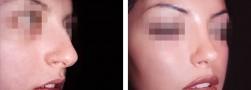 Zigomi, naso, mento: la profiloplastica