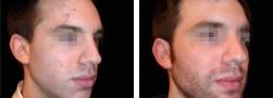 La profiloplastica maschile