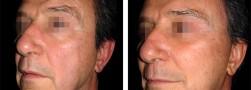 Ringiovanimento viso maschile
