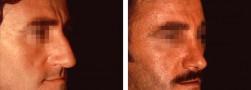 La rinoplastica maschile