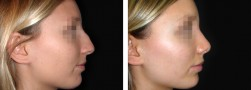 Rifacimento del naso: la rinoplastica