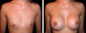 Mastoplastica: intervento per aumento del seno
